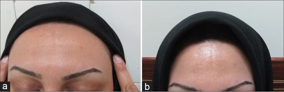 Comparison between the efficacy of 10% zinc sulfate solution with 4%  hydroquinone cream on improvement of melasma Iraji F, Tagmirriahi N,  Gavidnia K - Adv ...