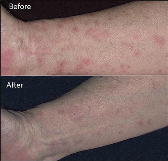 steroid taper ulcerative colitis