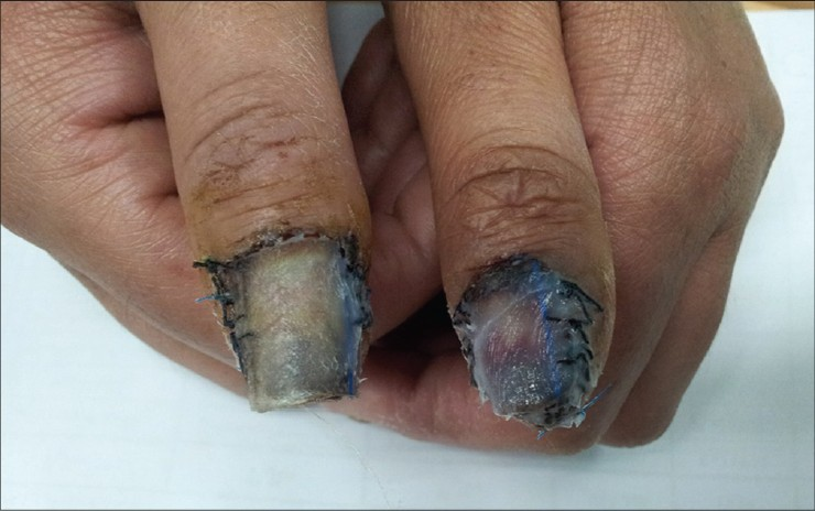Nail bed expansion: A new technique for correction of multiple ...
