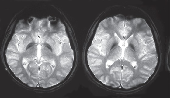 Figure 1: Bilateral basal ganglia hypodensity