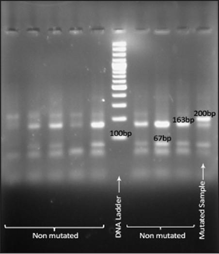 factor 5 leiden mutation