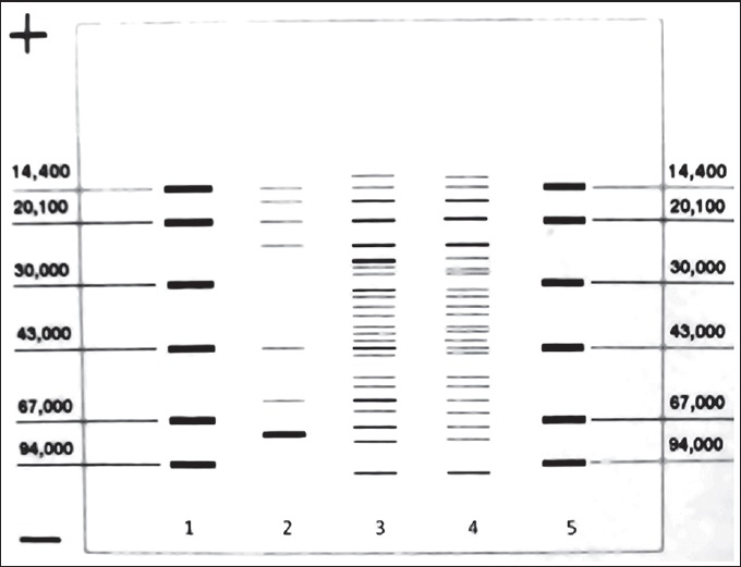 Figure 1: Comparison of the antigenic profi les of KLM and ALM using SDS-PAGE. Column 1: Standard molecules; Columns 3 and 6: ALM; columns 2 and 5: KLM; Column 4: Fresh <i>L. major</i>
