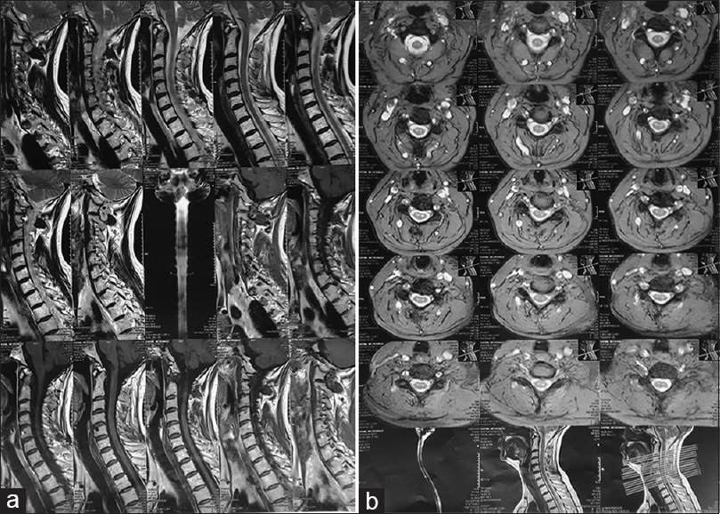 Figure 1: Cervical magnetic resonance imaging 2 month after onset of herpes blisters. (a) Sagittal plane. MRIs were obtained in multiple images with different pulse sequences. Left paracentral-central protruded disk at C4-C5 and C5-C6 levels with compression to epidural space-left nerve root and stenosis of spinal canal and left neuroforamina were found. Central protruded disk was noted at C6-C7 level. Cervical magnetic resonance imaging 2 month after onset of herpes blisters. (b) Axial plane. MRIs were obtained in multiple images with different pulse sequences. Left paracentral-central protruded disk at C4-C5 and C5-C6 levels with compression to epidural space-left nerve root and stenosis of spinal canal and left neuroforamina were found. Central protruded disk was noted at C6-C7 level