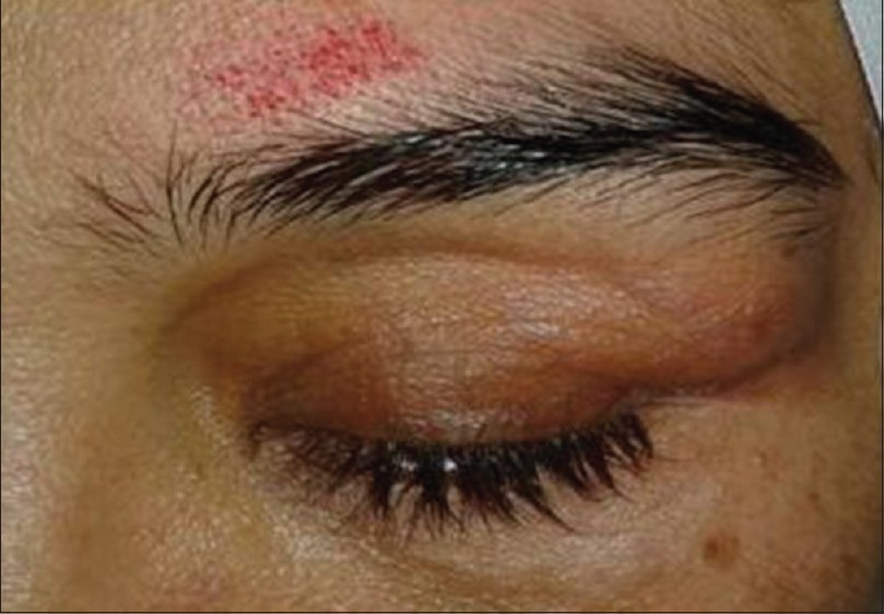 Figure 2: This photograph shows soft and small subcutaneous lumps in the left upper eyelid