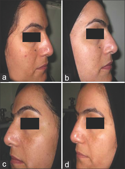 Figure 3: Example of patient showing improvements on both sides. Right side at baseline (a) and week-10 after using solution 20% azelaic acid, 10% resorcinol and 6% phytic acid) (b), left side at baseline (c) and week-10 after using 50% glycolic acid (d)