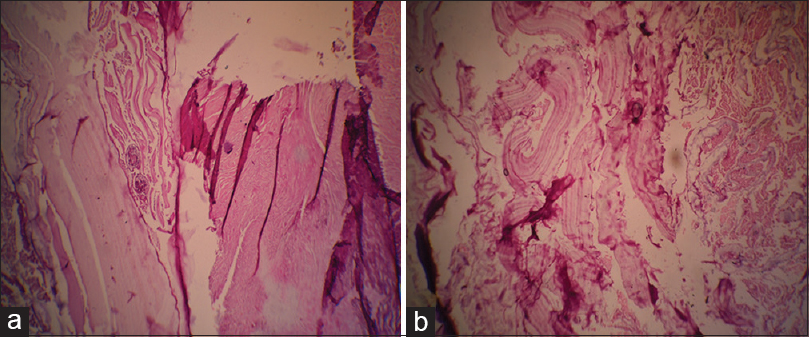 Figure 3: (a and b) Hydatid cyst surrounded by muscular bundles; laminated and germinal layers are seen