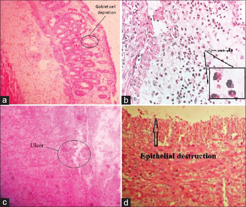 Figure 2: Histological observations from colon biopsies of acetic acid-induced colitis. (a) Goblet cell depletion (×10). (b) Dominant infiltration of neutrophils (×40). (c). Ulcerated tissue and neutrophil infiltration (×10). (d) Epithelial destruction (×10)