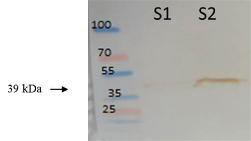 Figure 4: Western blot analysis soluble fraction after cell disruption using control lysis buffer (1) and optimum lysis buffer (2), and the arrow indicates reteplase