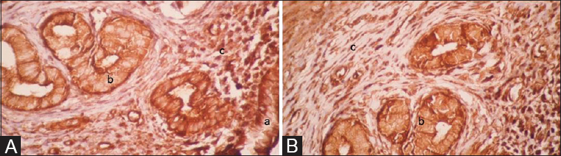 Figure 1: The immunohistochemistry staining of the endometrium with antileukemia inhibitory factor (A) and antivascular endothelial growth factor A (B) antibody by light microscopy. Expression of leukemia inhibitory factor and vascular endothelial growth factor A proteins in the luminal epithelium (a), glandular epithelium (b), and stromal cells (c) was detected in all of the groups. The leukemia inhibitory factor + and vascular endothelial growth factor A + cells are shown in a brown color (×40)