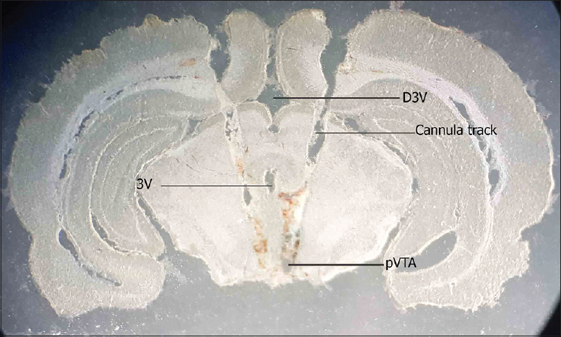 Figure 1: Coronal photomicrograph of bilateral microinjection site in the ventral tegmental area. 3V: 3<sup>rd</sup> ventricle, D3V: Dorsal 3<sup>rd</sup> ventricle, pVTA: Posterior ventral tegmental area