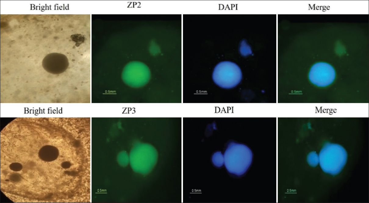 Figure 5: Immunofluorescent assessment of oocyte-specific markers ZP2 and ZP3 of oocyte-like structures encapsulated with calcium alginate. The oocyte-like structures stained for ZP2 (a-d) and ZP3 (e-h) following 14 days' cultivation; the nuclei were counterstained by 4',6-Diamidino-2-phenylindole