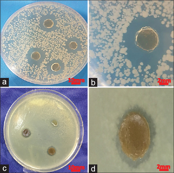 Figure 5: <i>Bacillus cereus</i> (a and b) and <i>Staphylococcus aureus</i> (c and d)